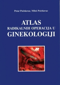 Atlas radikalnih operacija u ginekologiji