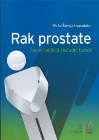 Rak prostate - najvarijabilniji zloćudni tumor