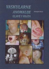 Vaskularne anomalije glave i vrata