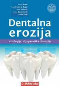 Dentalna erozija: etiologija, dijagnostika i terapija