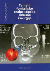 Temelji funkcijske endoskopske sinusne kirurgije